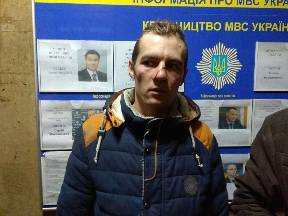 Правоохоронці зламали ніс активісту з Кіровоградщини. ФОТО, фото-1